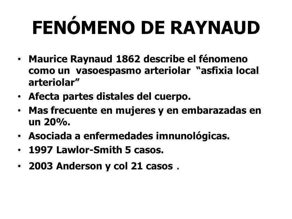FENÓMENO DE RAYNAUD Maurice Raynaud 1862 describe el fénomeno como un vasoespasmo arteriolar asfixia local arteriolar Afecta partes distales del cuerp