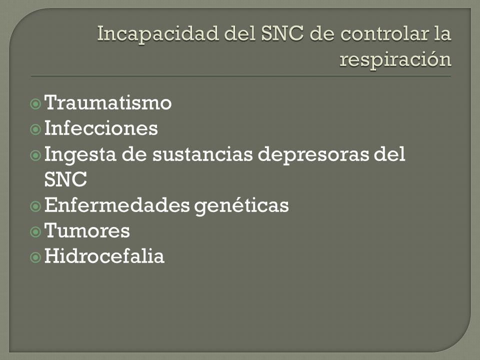 Traumatismo Infecciones Ingesta de sustancias depresoras del SNC Enfermedades genéticas Tumores Hidrocefalia