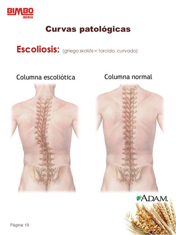Página: 19 Escoliosis: (griego skoliós = torcido, curvado) Curvas patológicas