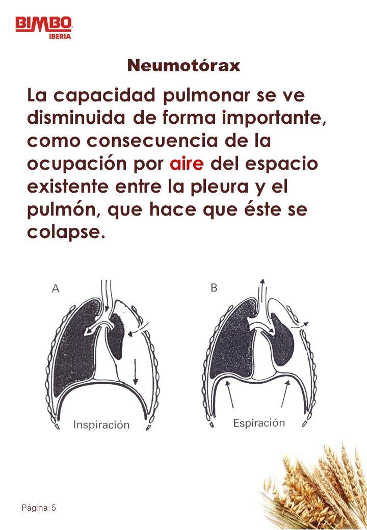 Página: 5 Neumotórax La capacidad pulmonar se ve disminuida de forma importante, como consecuencia de la ocupación por aire del espacio existente entr