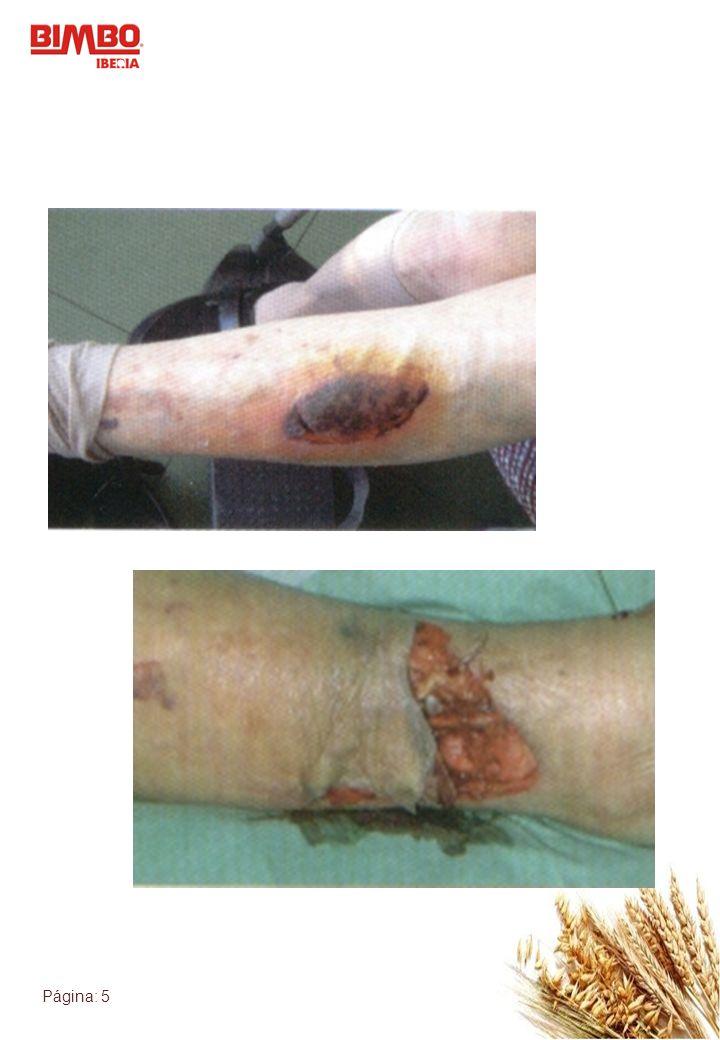 Página: 6 Heridas