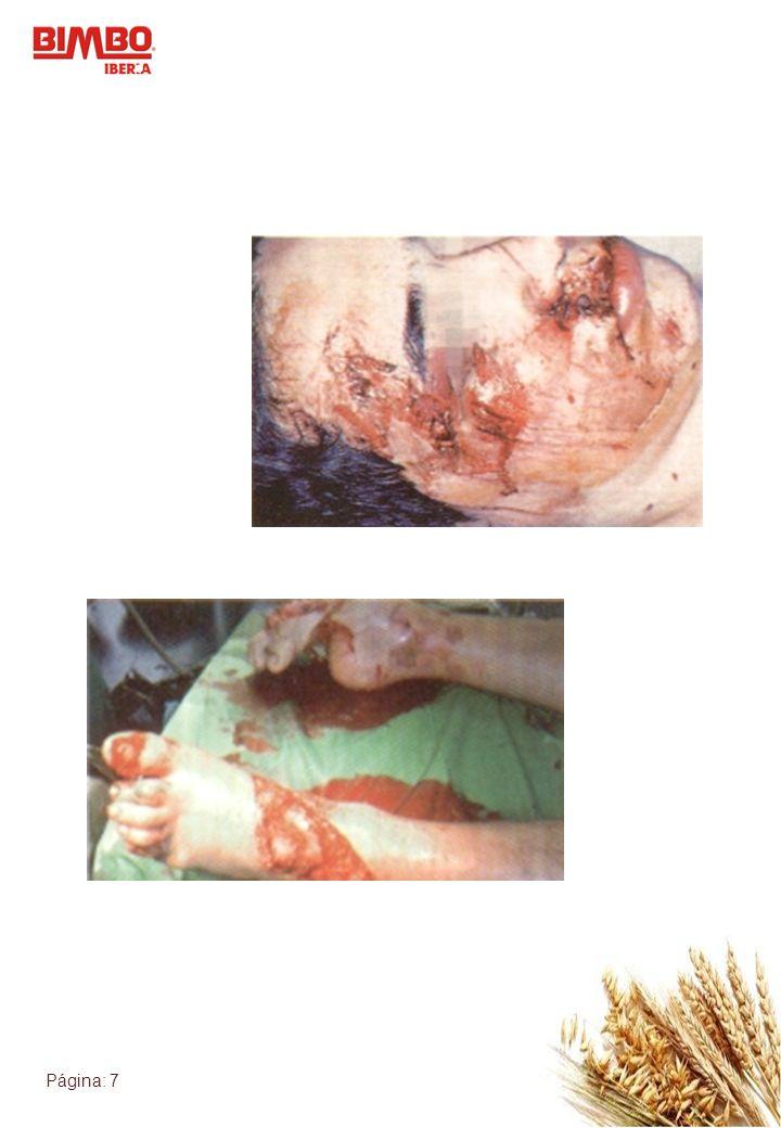 Página: 7 Heridas
