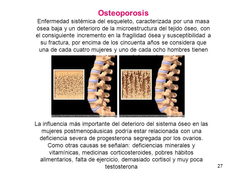 27 Osteoporosis Enfermedad sistémica del esqueleto, caracterizada por una masa ósea baja y un deterioro de la microestructura del tejido óseo, con el