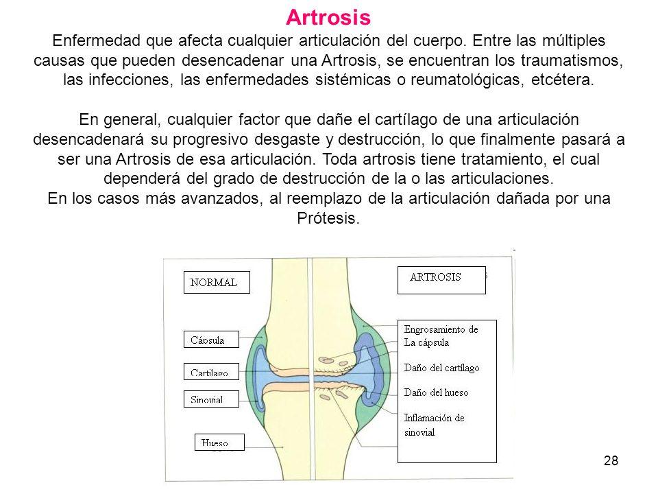 28 Artrosis Enfermedad que afecta cualquier articulación del cuerpo. Entre las múltiples causas que pueden desencadenar una Artrosis, se encuentran lo