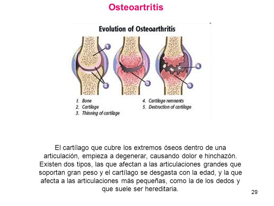 29 Osteoartritis El cartílago que cubre los extremos óseos dentro de una articulación, empieza a degenerar, causando dolor e hinchazón. Existen dos ti