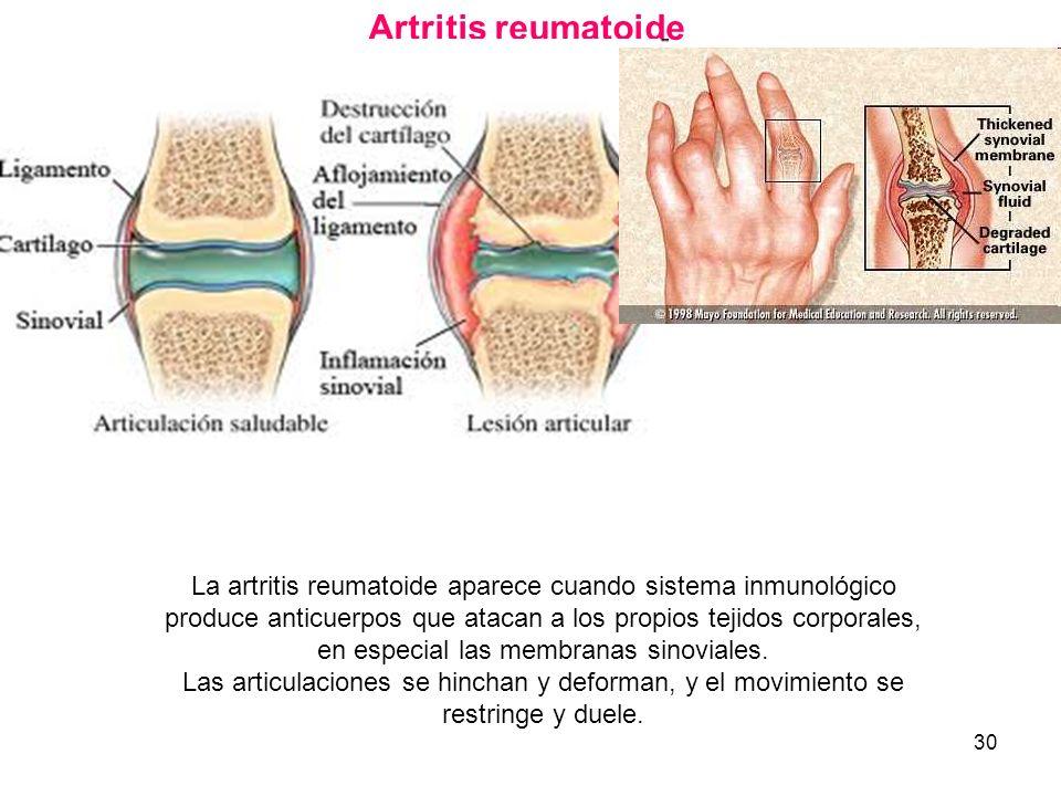 30 Artritis reumatoide La artritis reumatoide aparece cuando sistema inmunológico produce anticuerpos que atacan a los propios tejidos corporales, en