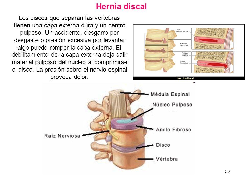 32 Hernia discal Los discos que separan las vértebras tienen una capa externa dura y un centro pulposo. Un accidente, desgarro por desgaste o presión