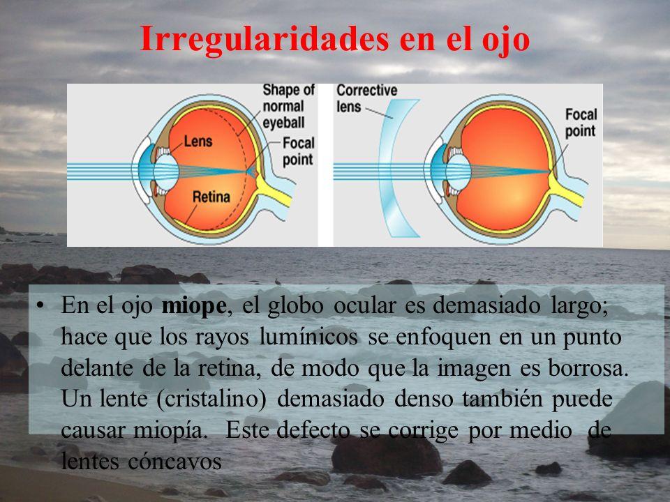 En el ojo miope, el globo ocular es demasiado largo; hace que los rayos lumínicos se enfoquen en un punto delante de la retina, de modo que la imagen
