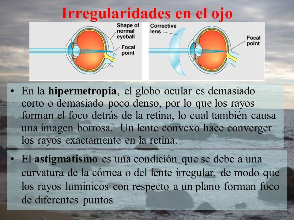 En la hipermetropía, el globo ocular es demasiado corto o demasiado poco denso, por lo que los rayos forman el foco detrás de la retina, lo cual tambi