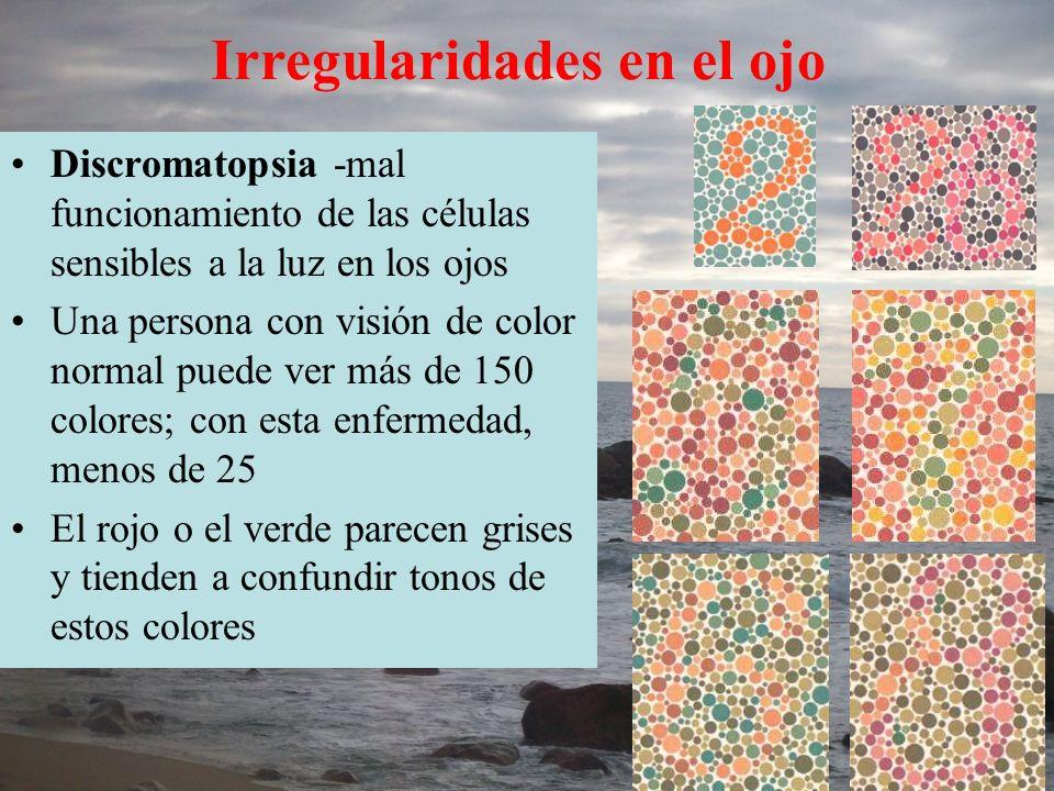 Discromatopsia -mal funcionamiento de las células sensibles a la luz en los ojos Una persona con visión de color normal puede ver más de 150 colores;