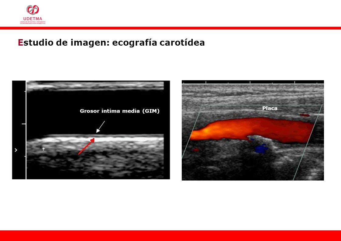 Estudio de imagen: ecografía carotídea Grosor intima media (GIM) Placa