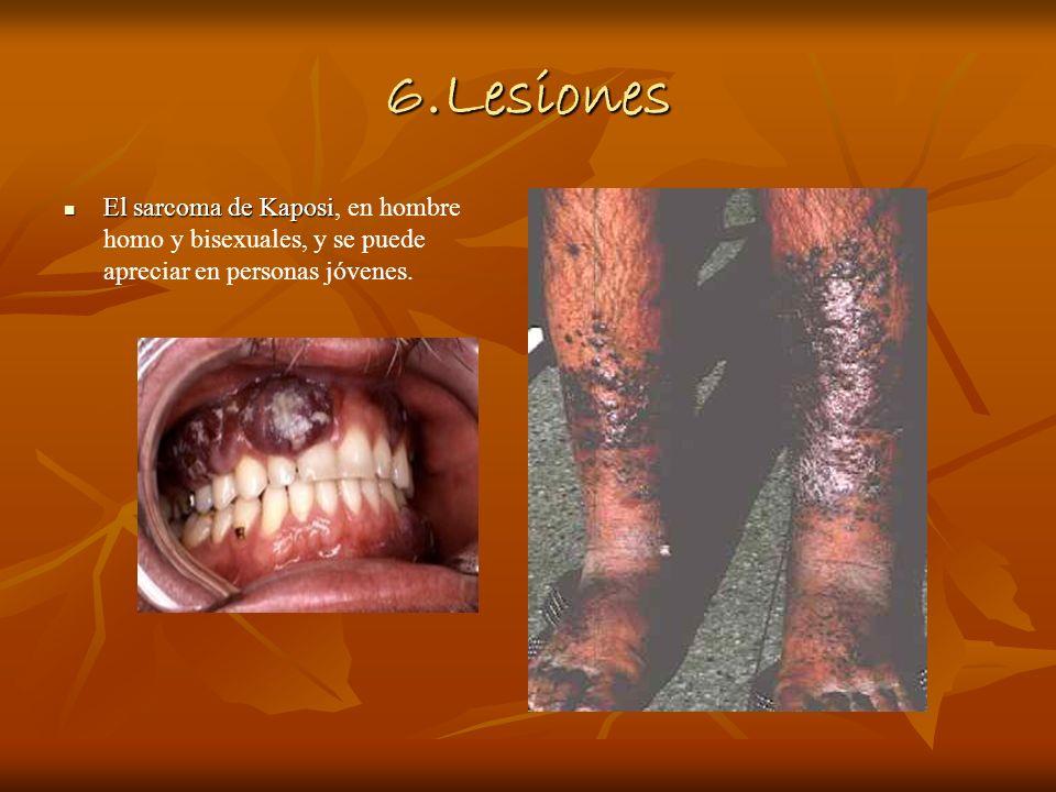 6.Lesiones El sarcoma de Kaposi El sarcoma de Kaposi, en hombre homo y bisexuales, y se puede apreciar en personas jóvenes.