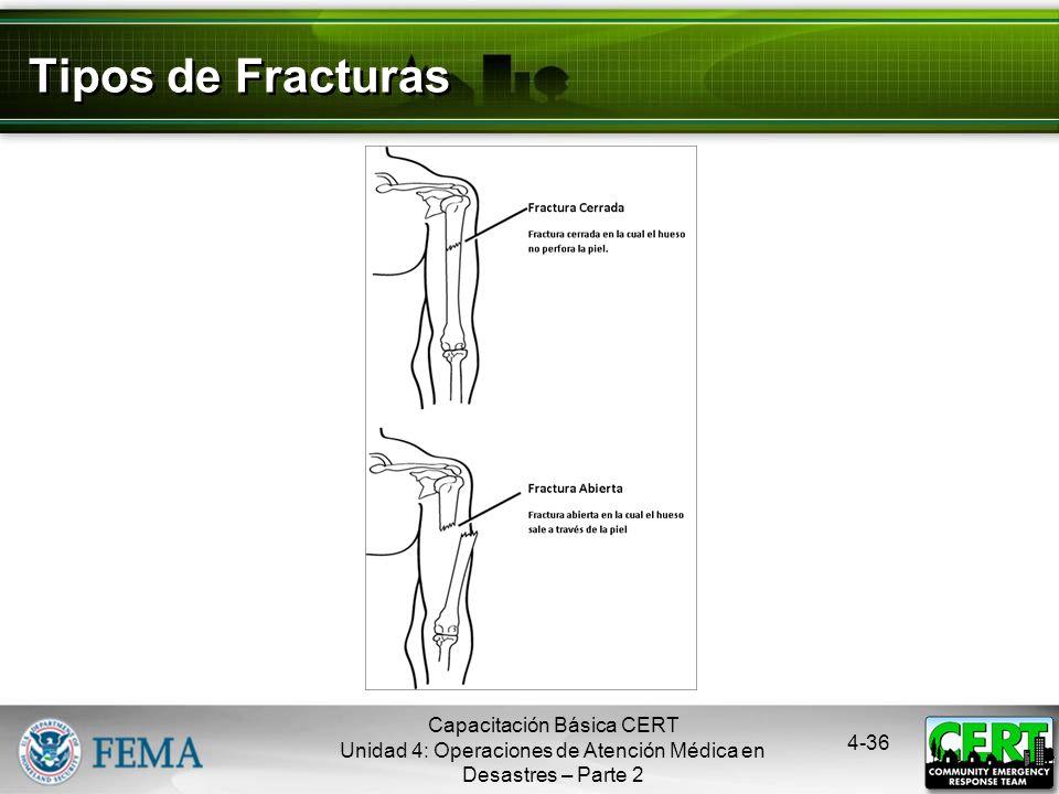 4-35 Fracturas, Dislocaciones, Esguinces y Distensiones Inmovilizar la lesión y las articulaciones que están inmediatamente arriba y abajo del sitio d