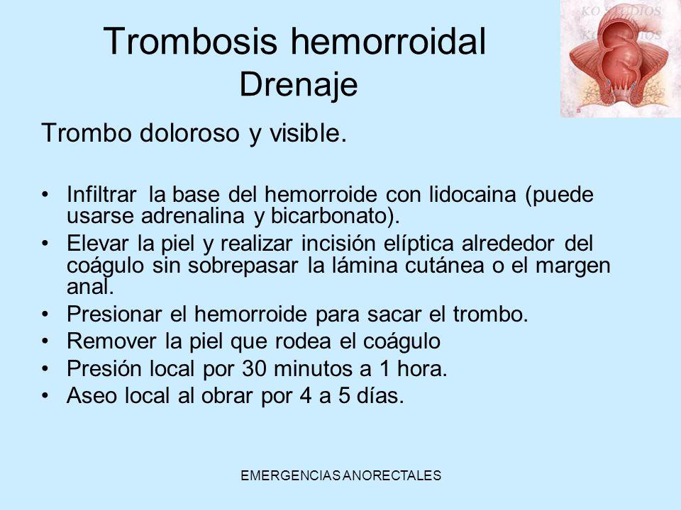 EMERGENCIAS ANORECTALES Trombo doloroso y visible. Infiltrar la base del hemorroide con lidocaina (puede usarse adrenalina y bicarbonato). Elevar la p