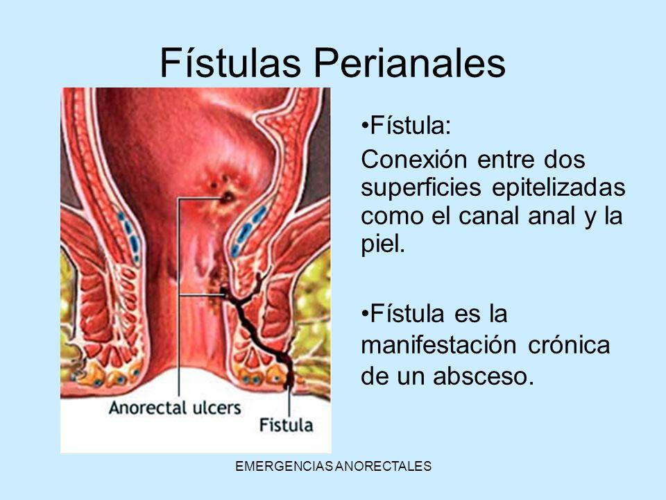 EMERGENCIAS ANORECTALES Fístulas Perianales Fístula: Conexión entre dos superficies epitelizadas como el canal anal y la piel. Fístula es la manifesta