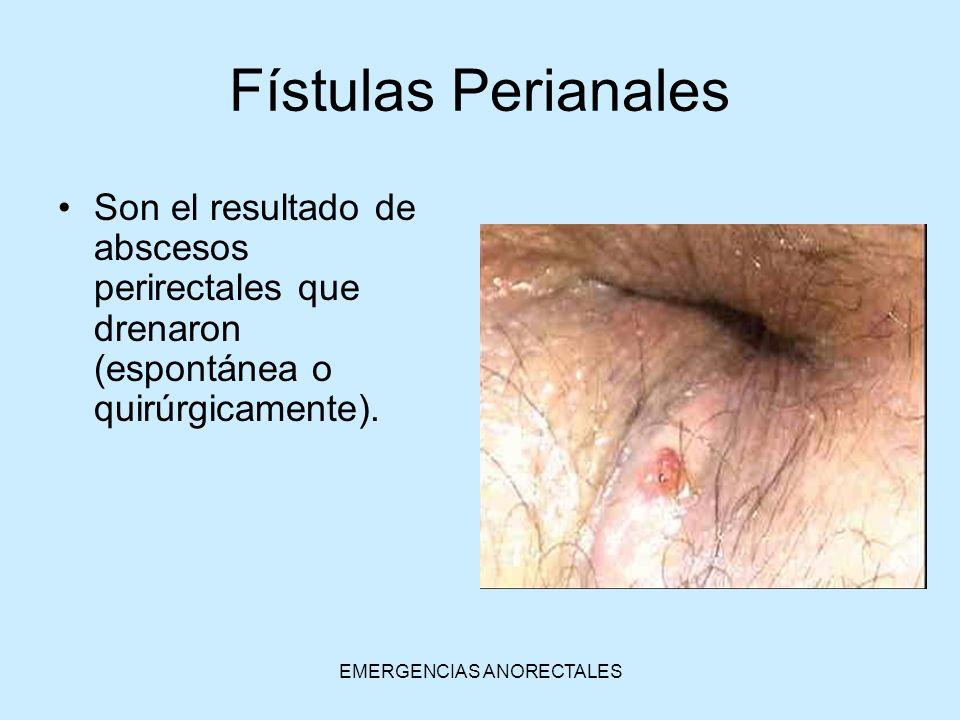 EMERGENCIAS ANORECTALES Fístulas Perianales Son el resultado de abscesos perirectales que drenaron (espontánea o quirúrgicamente).