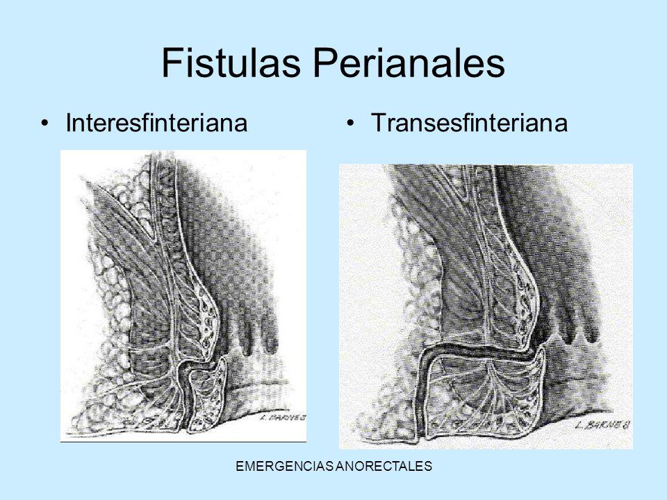 EMERGENCIAS ANORECTALES InteresfinterianaTransesfinteriana Fistulas Perianales