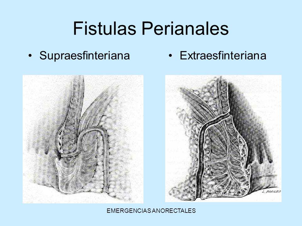 EMERGENCIAS ANORECTALES ExtraesfinterianaSupraesfinteriana Fistulas Perianales