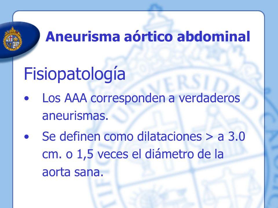 Aneurisma aórtico abdominal Fisiopatología Los AAA corresponden a verdaderos aneurismas. Se definen como dilataciones > a 3.0 cm. o 1,5 veces el diáme