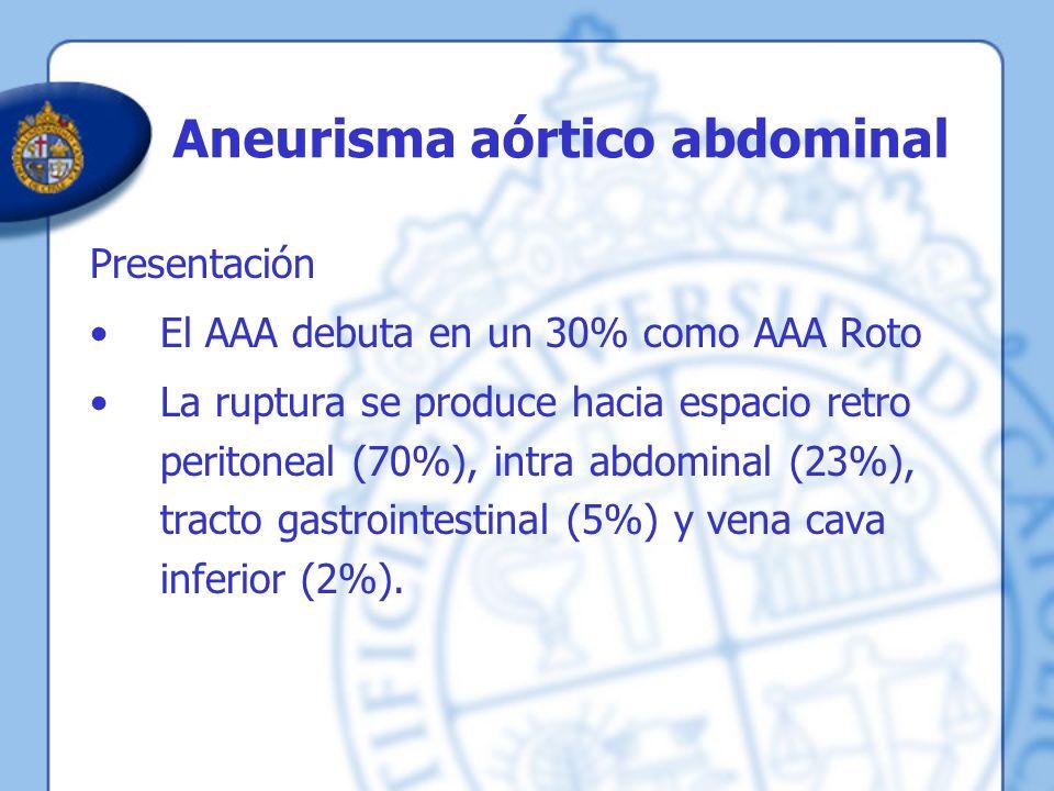 Aneurisma aórtico abdominal Presentación El AAA debuta en un 30% como AAA Roto La ruptura se produce hacia espacio retro peritoneal (70%), intra abdom