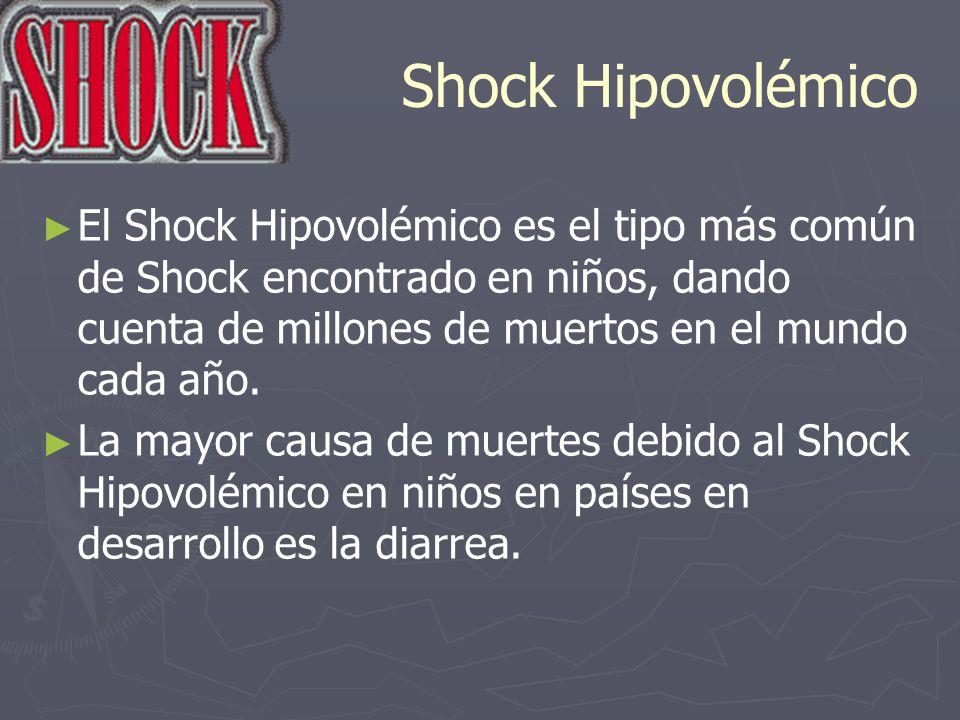 Shock Hipovolémico El Shock Hipovolémico es el tipo más común de Shock encontrado en niños, dando cuenta de millones de muertos en el mundo cada año.