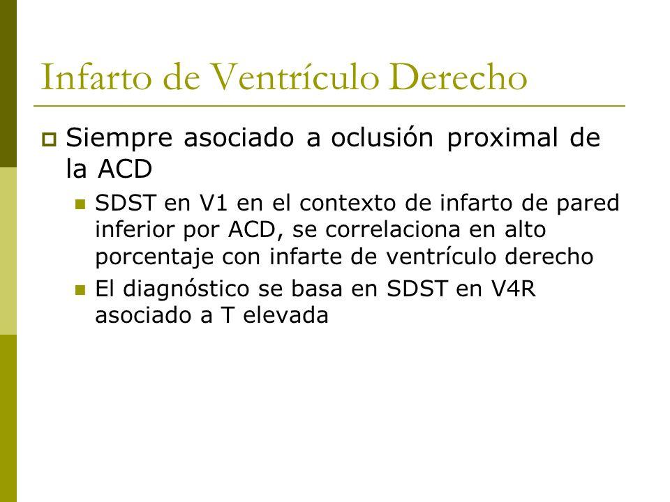Infarto de Ventrículo Derecho Siempre asociado a oclusión proximal de la ACD SDST en V1 en el contexto de infarto de pared inferior por ACD, se correl