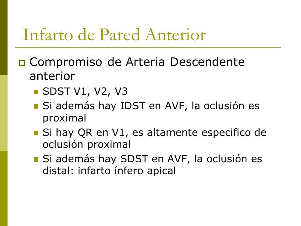 Infarto de Pared Anterior Compromiso de Arteria Descendente anterior SDST V1, V2, V3 Si además hay IDST en AVF, la oclusión es proximal Si hay QR en V