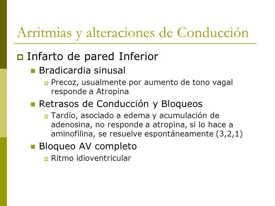 Arritmias y alteraciones de Conducción Infarto de pared Inferior Bradicardia sinusal Precoz, usualmente por aumento de tono vagal responde a Atropina