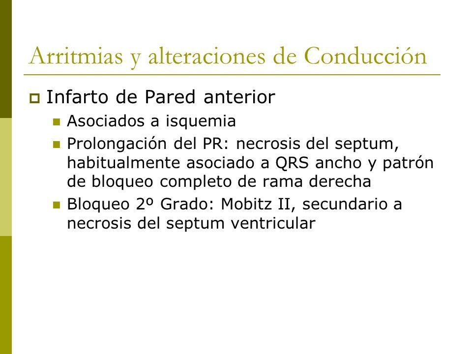 Arritmias y alteraciones de Conducción Infarto de Pared anterior Asociados a isquemia Prolongación del PR: necrosis del septum, habitualmente asociado
