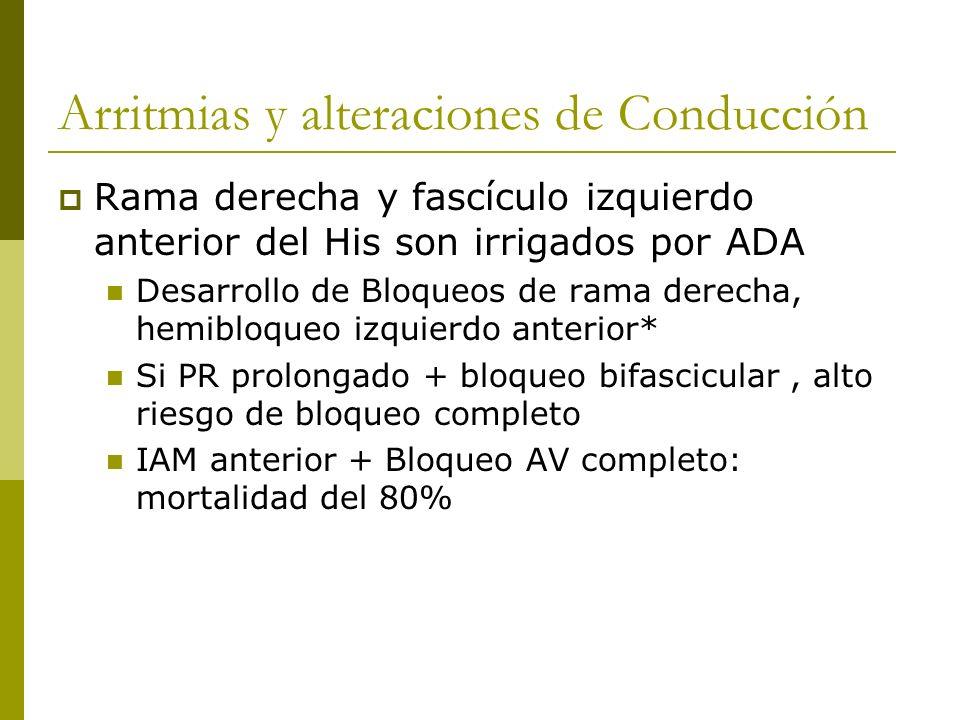 Arritmias y alteraciones de Conducción Rama derecha y fascículo izquierdo anterior del His son irrigados por ADA Desarrollo de Bloqueos de rama derech