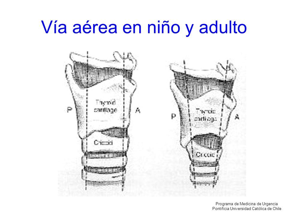 OBTRUCCIÓN DE VIA AEREA VIA AEREA SUPERIOR: nariz, faringe posterior, laringe o subglotis ESTRIDOR Programa de Medicina de Urgencia Pontificia Universidad Católica de Chile