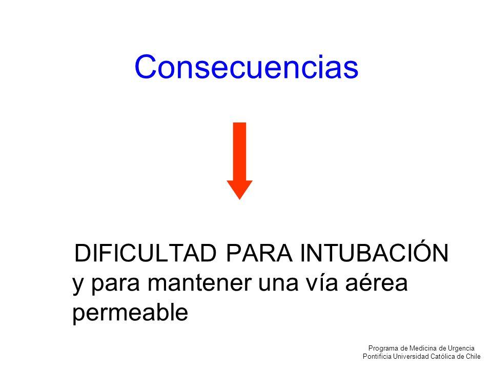 Intubación en el niño Programa de Medicina de Urgencia Pontificia Universidad Católica de Chile