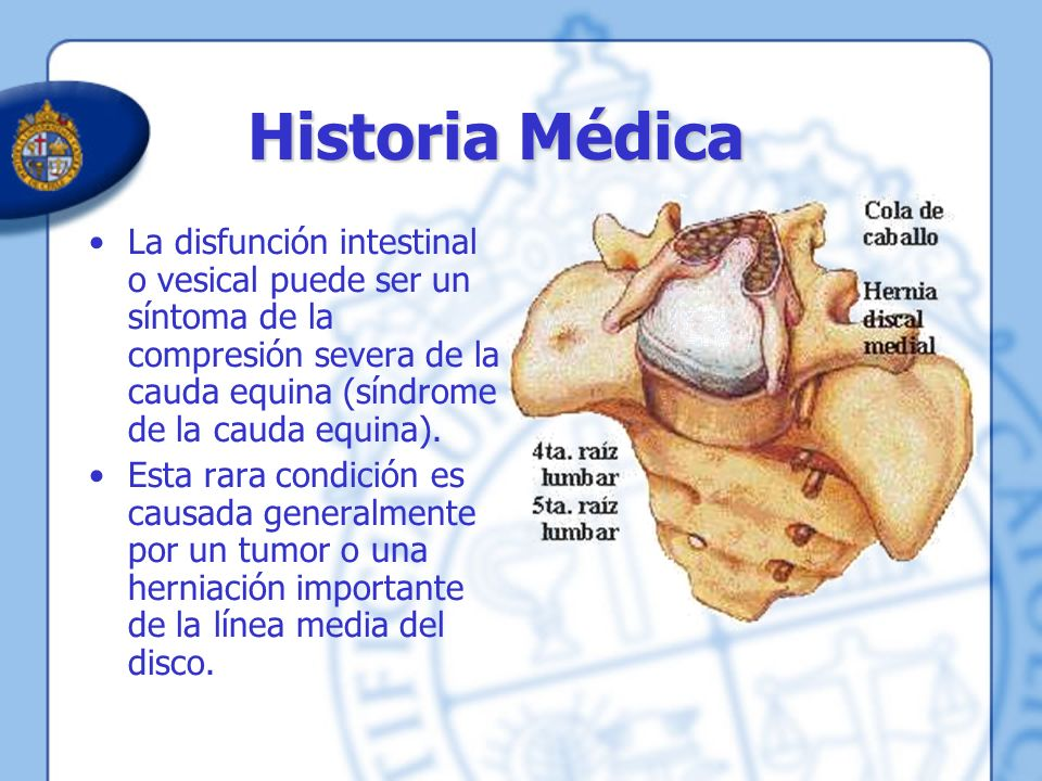 Historia Médica La disfunción intestinal o vesical puede ser un síntoma de la compresión severa de la cauda equina (síndrome de la cauda equina). Esta