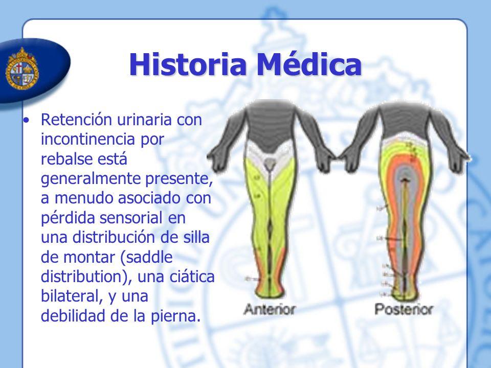 Historia Médica Retención urinaria con incontinencia por rebalse está generalmente presente, a menudo asociado con pérdida sensorial en una distribuci