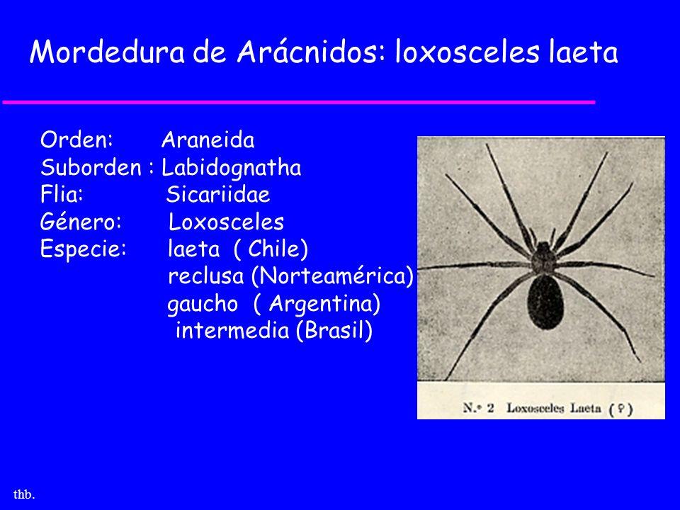 thb. Mordedura de Arácnidos: loxosceles laeta Orden: Araneida Suborden : Labidognatha Flia: Sicariidae Género: Loxosceles Especie: laeta ( Chile) recl