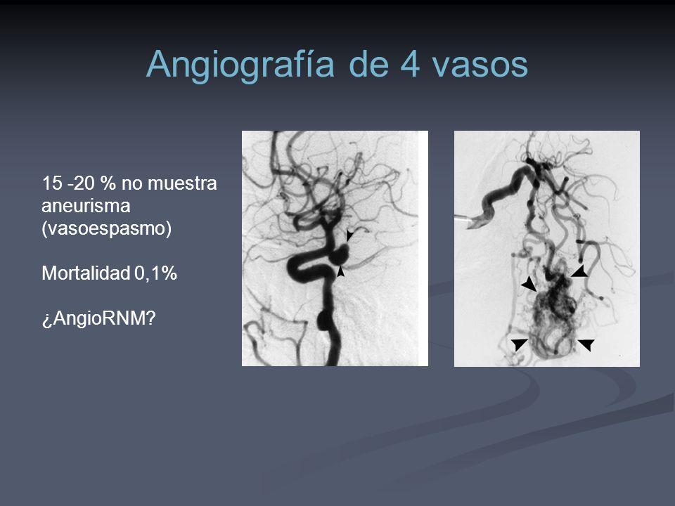 Angiografía de 4 vasos 15 -20 % no muestra aneurisma (vasoespasmo) Mortalidad 0,1% ¿AngioRNM?