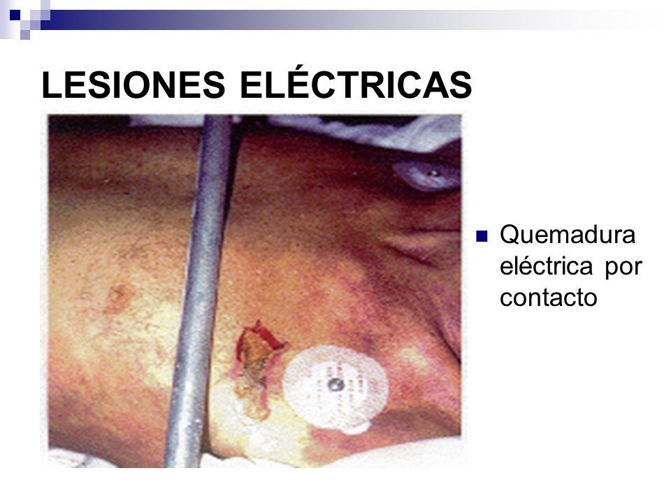 LESIONES ELÉCTRICAS CLASIFICACIÓN DE LAS LESIONES: Corriente Alterna (CA) de bajo voltaje CA de alto voltaje Corriente continua Rayo