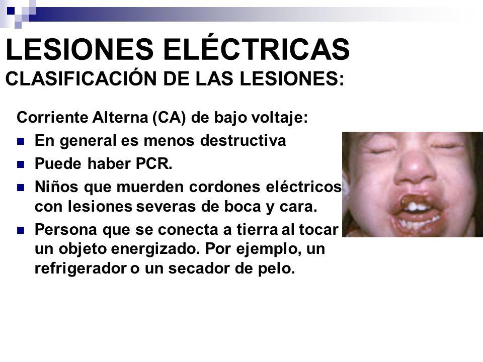 LESIONES ELÉCTRICAS CLASIFICACIÓN DE LAS LESIONES: CA de alto voltaje Son altamente destructivas con quemaduras severas y mioglobinuria El PCR es menos frecuente.
