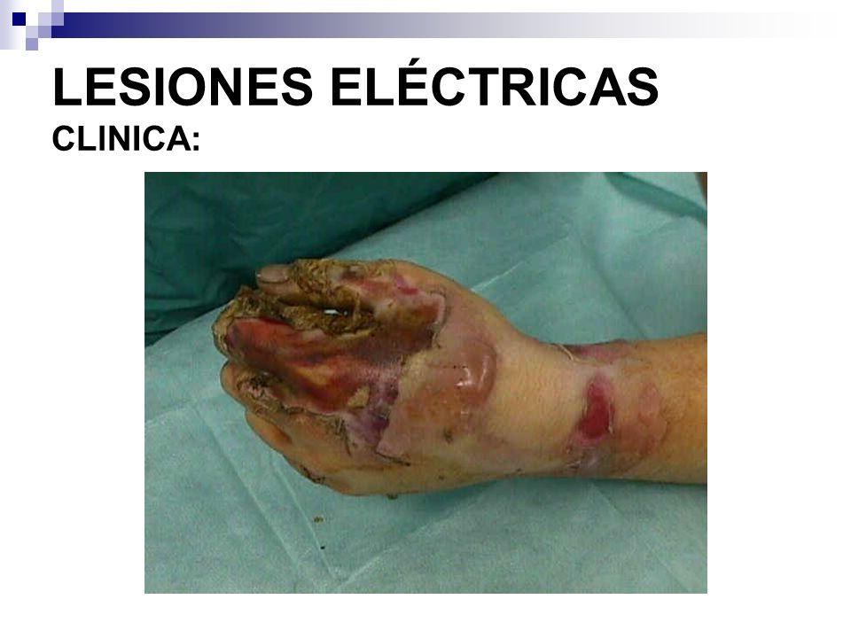 Manifestaciones Vasculares Vasoespasmo Trombosis arterial Formación de aneurismas Síndromes compartimentales, con mionecrosis masiva