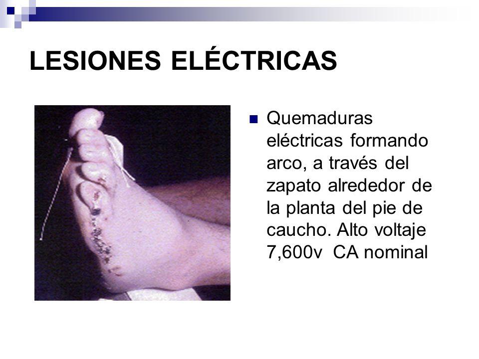 LESIONES ELÉCTRICAS Quemadura por contacto eléctrico 120 v CA.