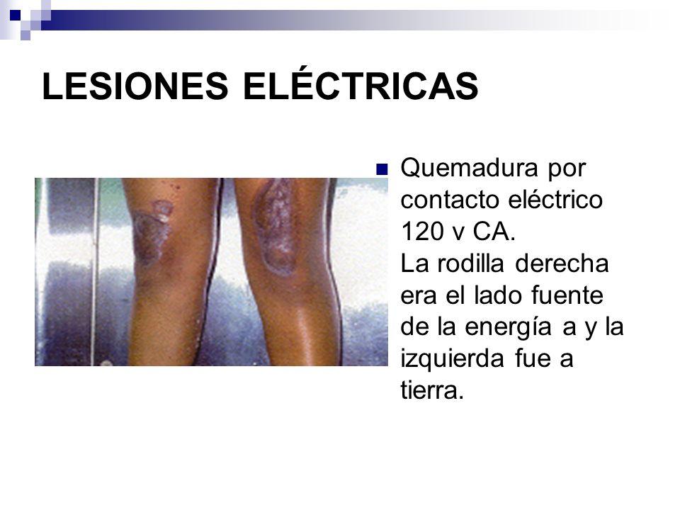 LESIONES ELÉCTRICAS Quemadura por contacto eléctrico 120 v CA. La rodilla derecha era el lado fuente de la energía a y la izquierda fue a tierra.