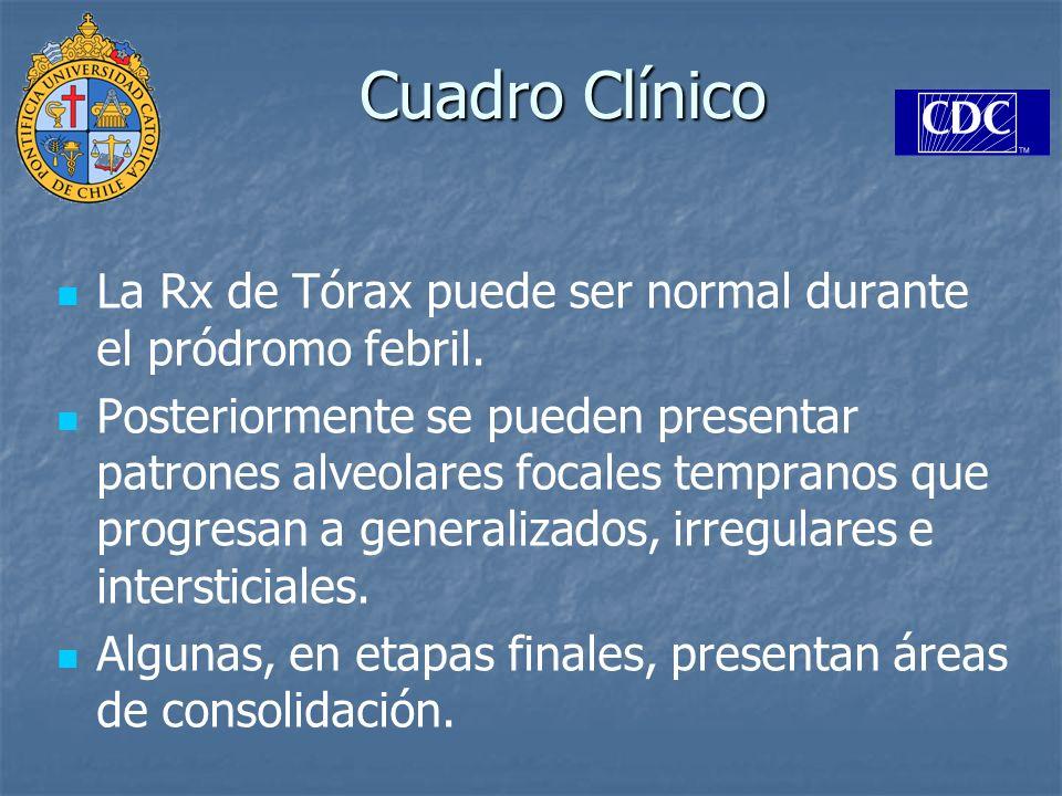 Cuadro Clínico La Rx de Tórax puede ser normal durante el pródromo febril. Posteriormente se pueden presentar patrones alveolares focales tempranos qu