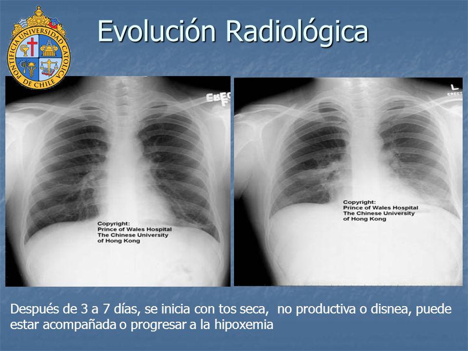 En 10 a 20% de los casos requieren ventilación mecánica.