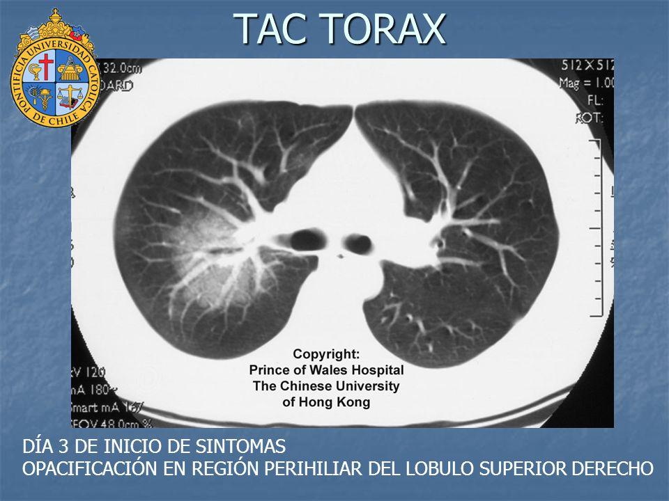 TAC TORAX DÍA 3 DE INICIO DE SINTOMAS OPACIFICACIÓN EN REGIÓN PERIHILIAR DEL LOBULO SUPERIOR DERECHO
