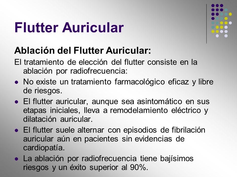 Flutter Auricular Ablación del Flutter Auricular: El tratamiento de elección del flutter consiste en la ablación por radiofrecuencia: No existe un tra