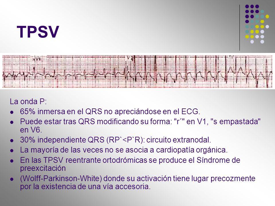 TPSV La onda P: 65% inmersa en el QRS no apreciándose en el ECG. Puede estar tras QRS modificando su forma: