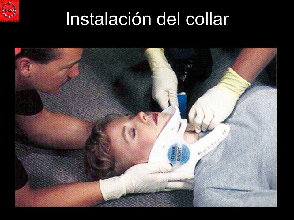Instalación del collar