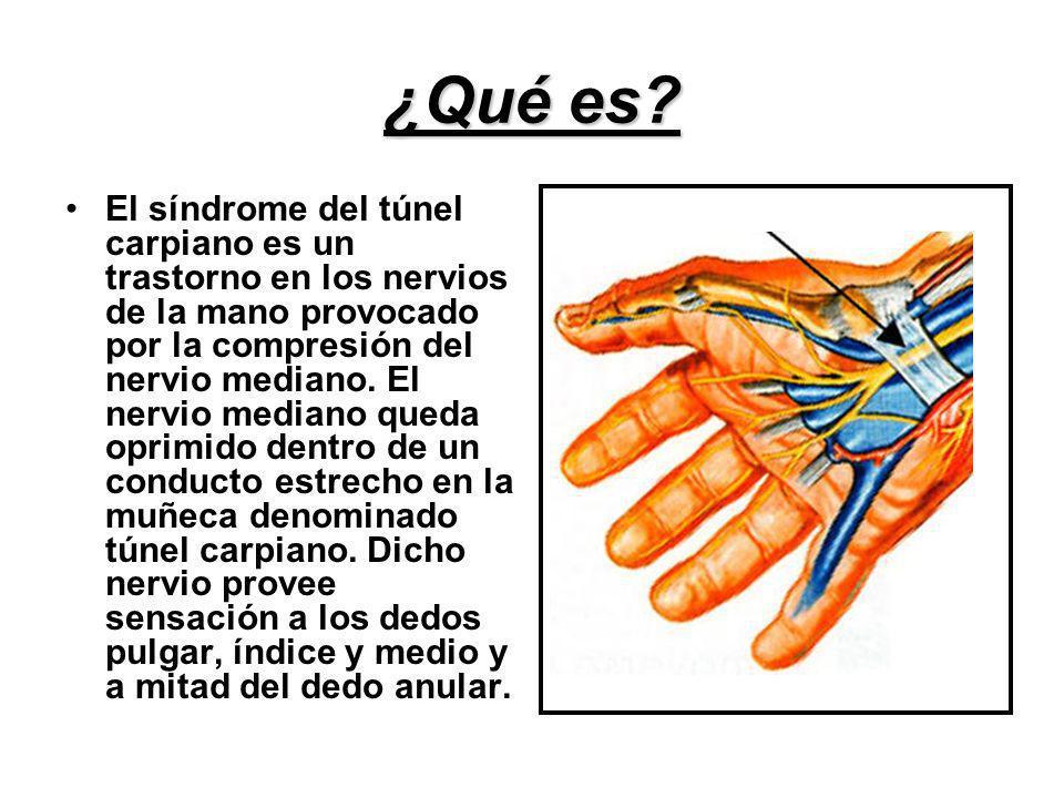 ¿Qué es? El síndrome del túnel carpiano es un trastorno en los nervios de la mano provocado por la compresión del nervio mediano. El nervio mediano qu