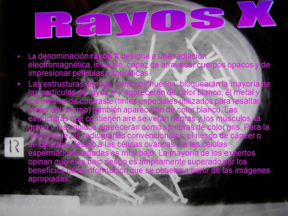 La denominación rayos X designa a una radiación electromagnética, invisible, capaz de atravesar cuerpos opacos y de impresionar películas fotográficas