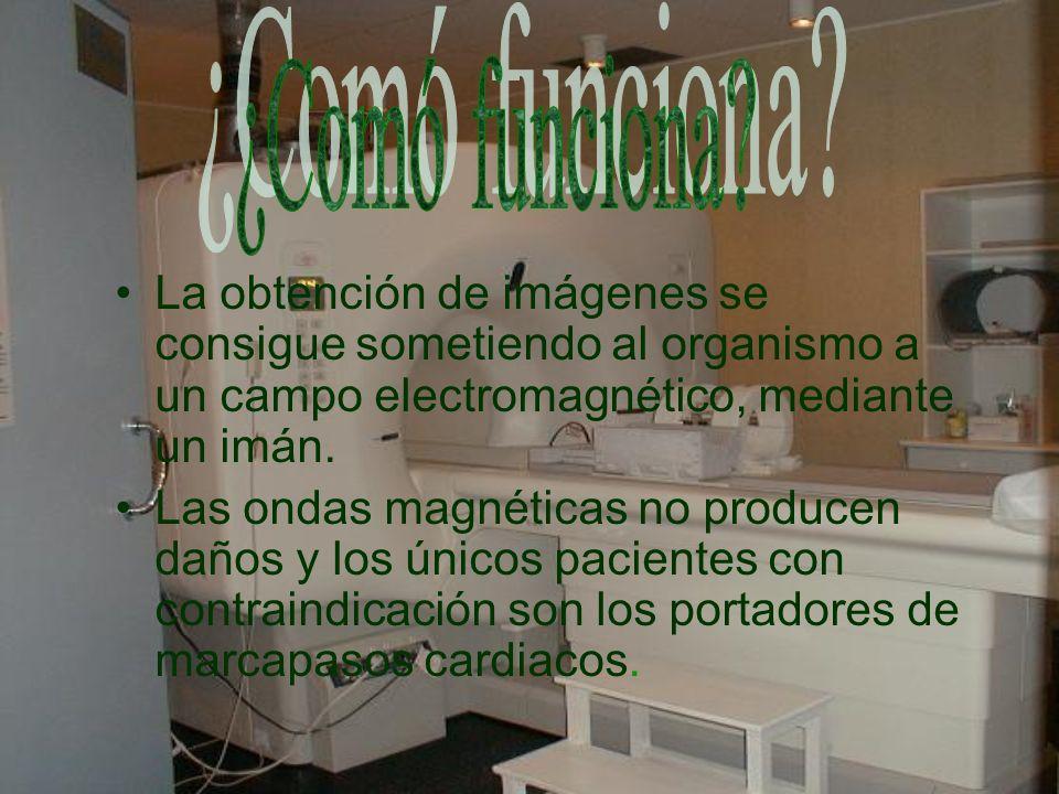 La obtención de imágenes se consigue sometiendo al organismo a un campo electromagnético, mediante un imán. Las ondas magnéticas no producen daños y l